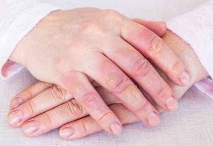 KELO-COTE® is effective on burn scars