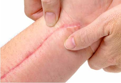 KELO-COTE® is effective on surgical scars
